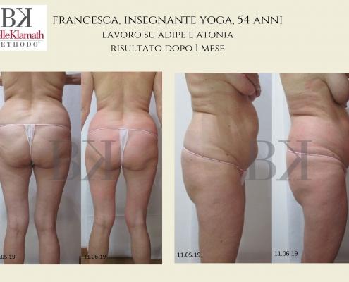 BelleKlamath foto risultati prima e dopo trattamenti corpo