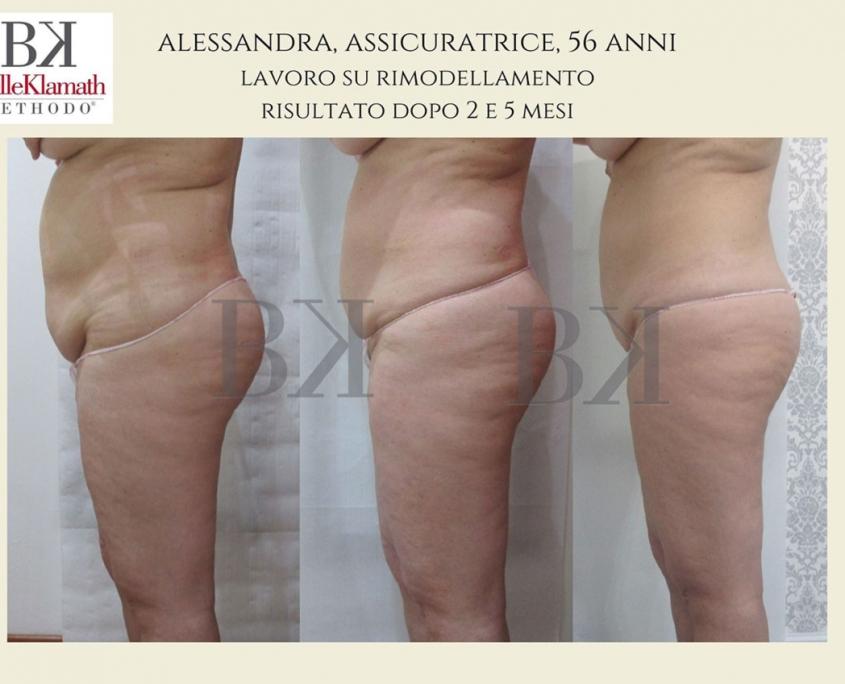 BelleKlamath foto risultati prima e dopo trattamento perfect body